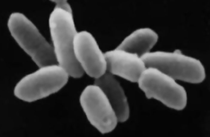 A picture of halophile archaea.